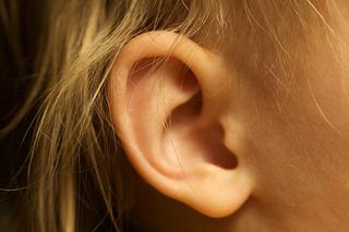 orejas soplillo estetica